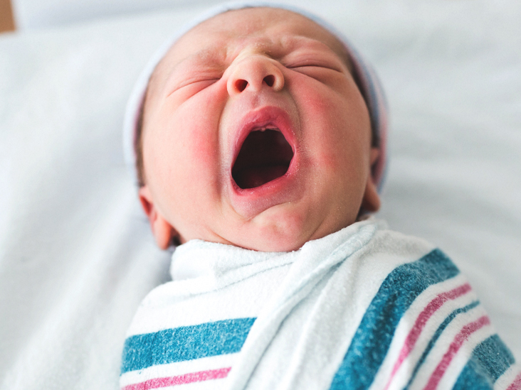Can Babies Get Cold Sores: Causes and Treatment