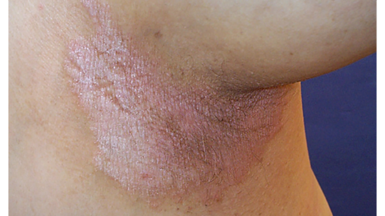 Inverse Psoriasis Vs Intertrigo What S The Difference