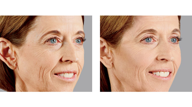 Juvederm vs Botox: What's the Difference?