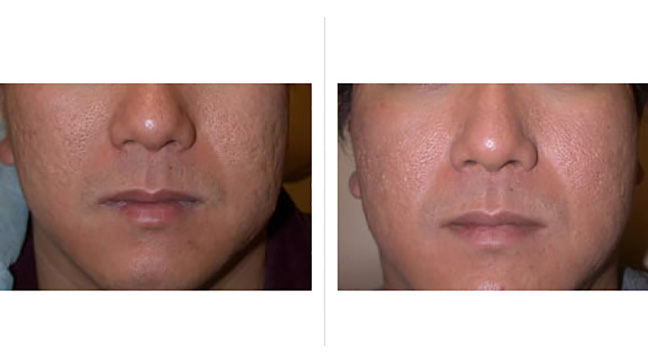 Laser Treatment For Scars Cost Effectiveness Face And More