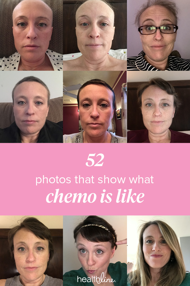 my chemotherapy diary: 52 photos of hair loss and recovery