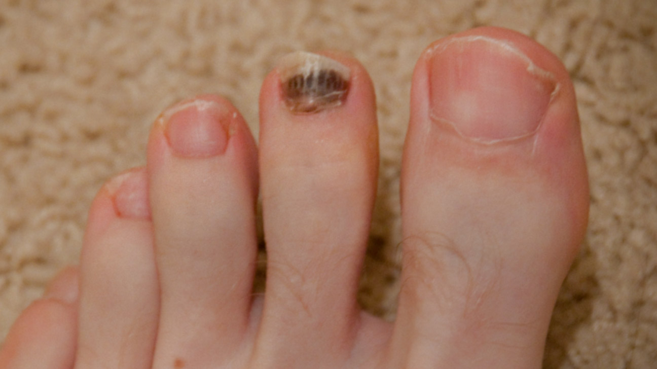 Toenail Problems: Causes, Symptoms, and Treatments