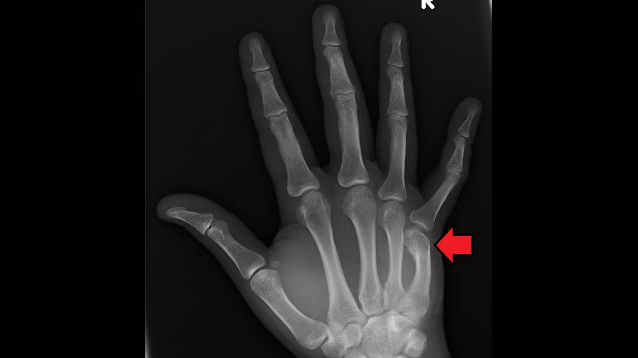 Broken Knuckle on Finger: Symptoms, Diagnosis, and Treatment