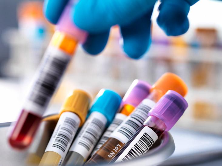 Lupus Anticoagulant: Test, Syndrome, Positive, Pregnancy