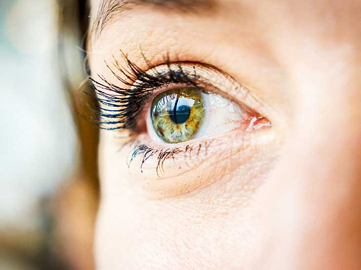 Eye Irritation Causes and Treatment: Allergies and More