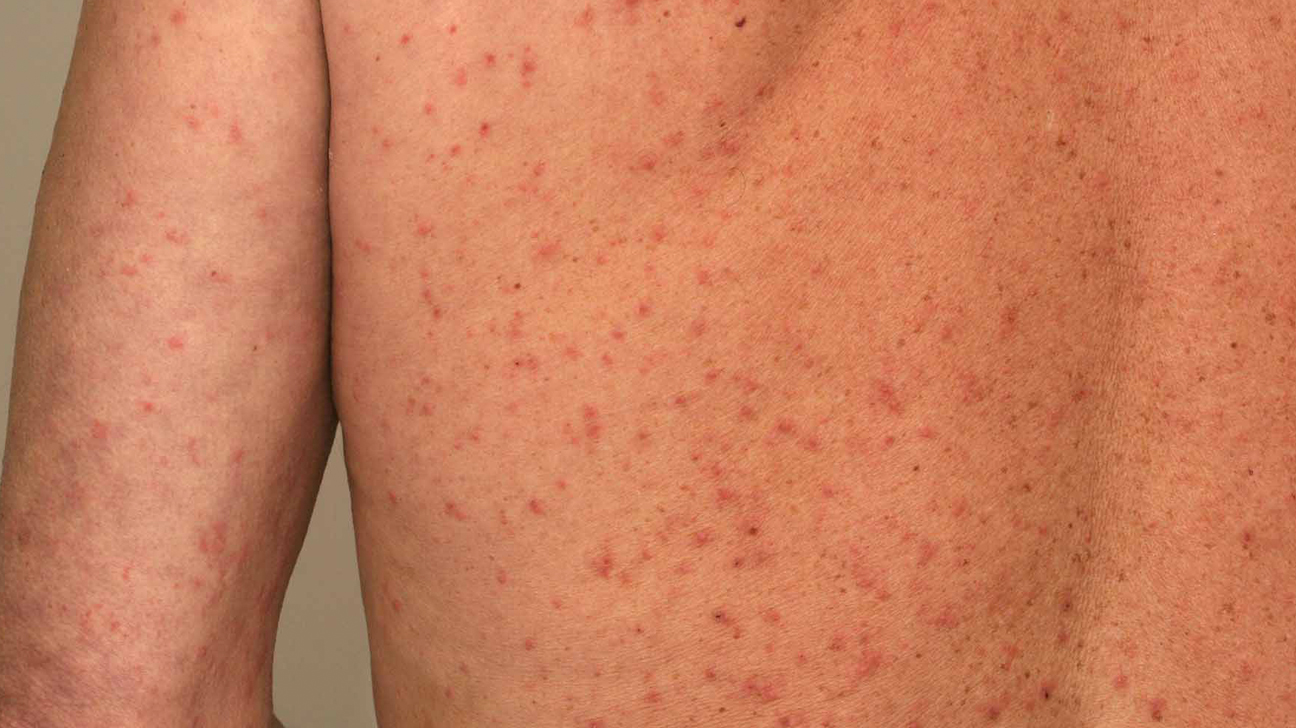 Psoriasis vs  Scabies: What's the Difference, Pictures, and More