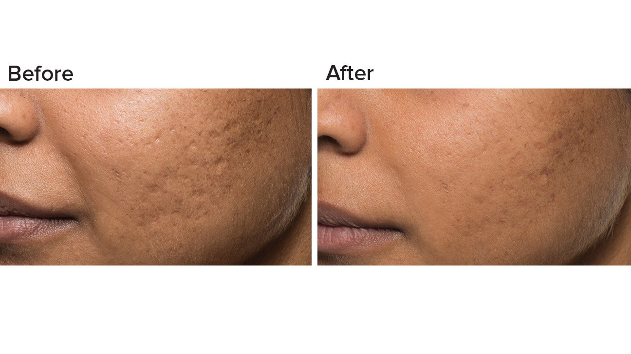Bellafill Vs Juvederm Comparing The Two Dermal Fillers