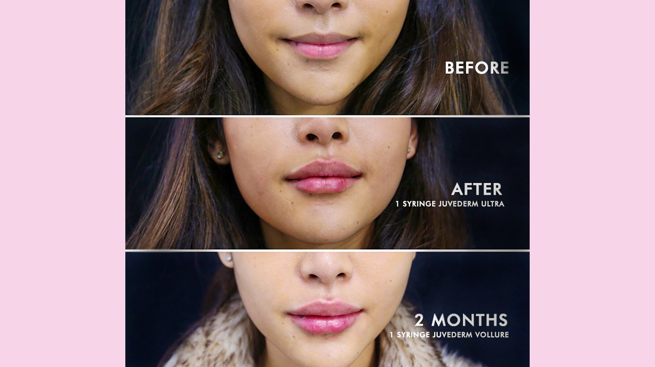 Restylane vs  Juvederm for Lips: What's the Difference?
