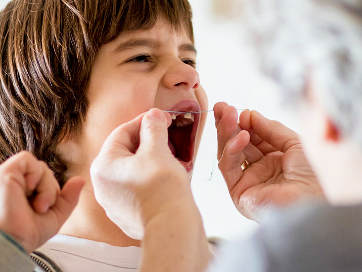 Tooth Extraction Aftercare: Food, Children, Pain Management
