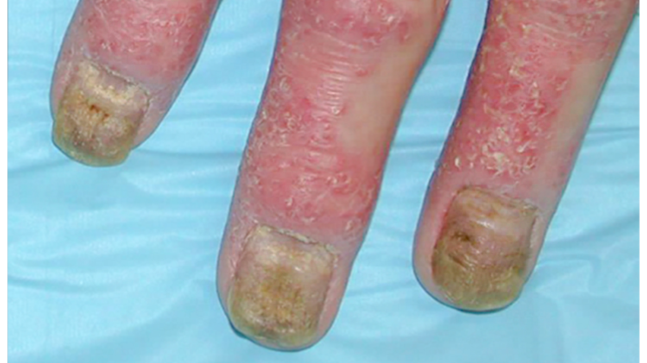 Nail Psoriasis vs. Fungus: Learn the Signs