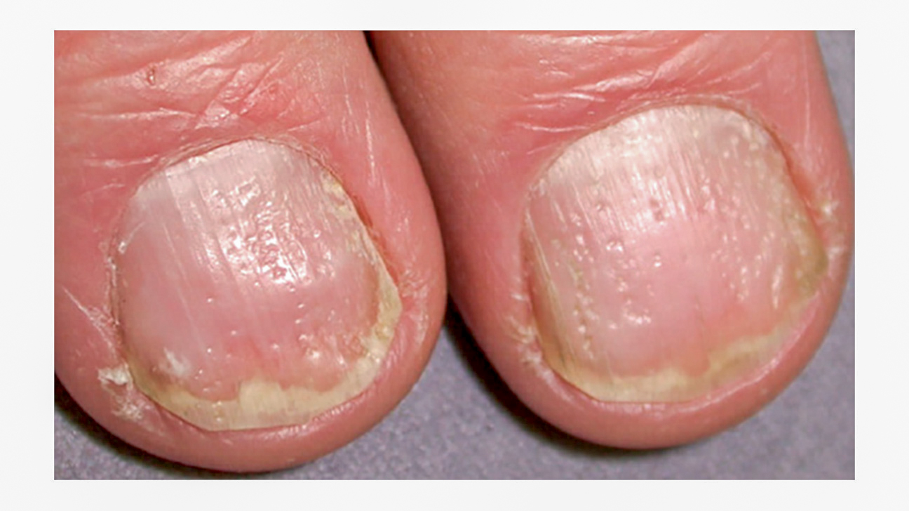 Nail psoriasis | Primary Care Dermatology Society | UK