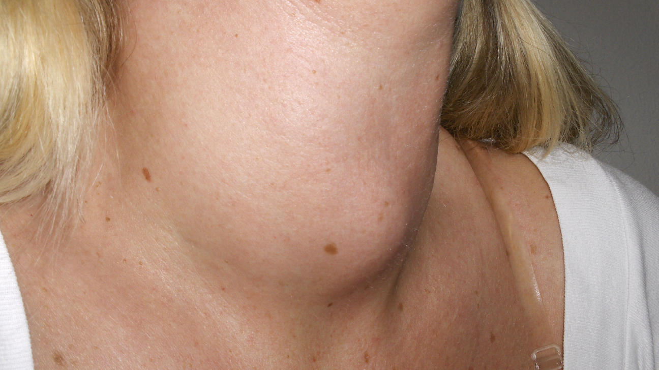 Goiter Causes Types And Treatment