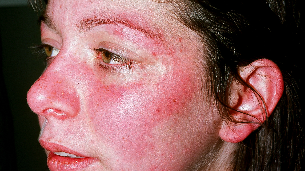 how to treat guttate psoriasis on face