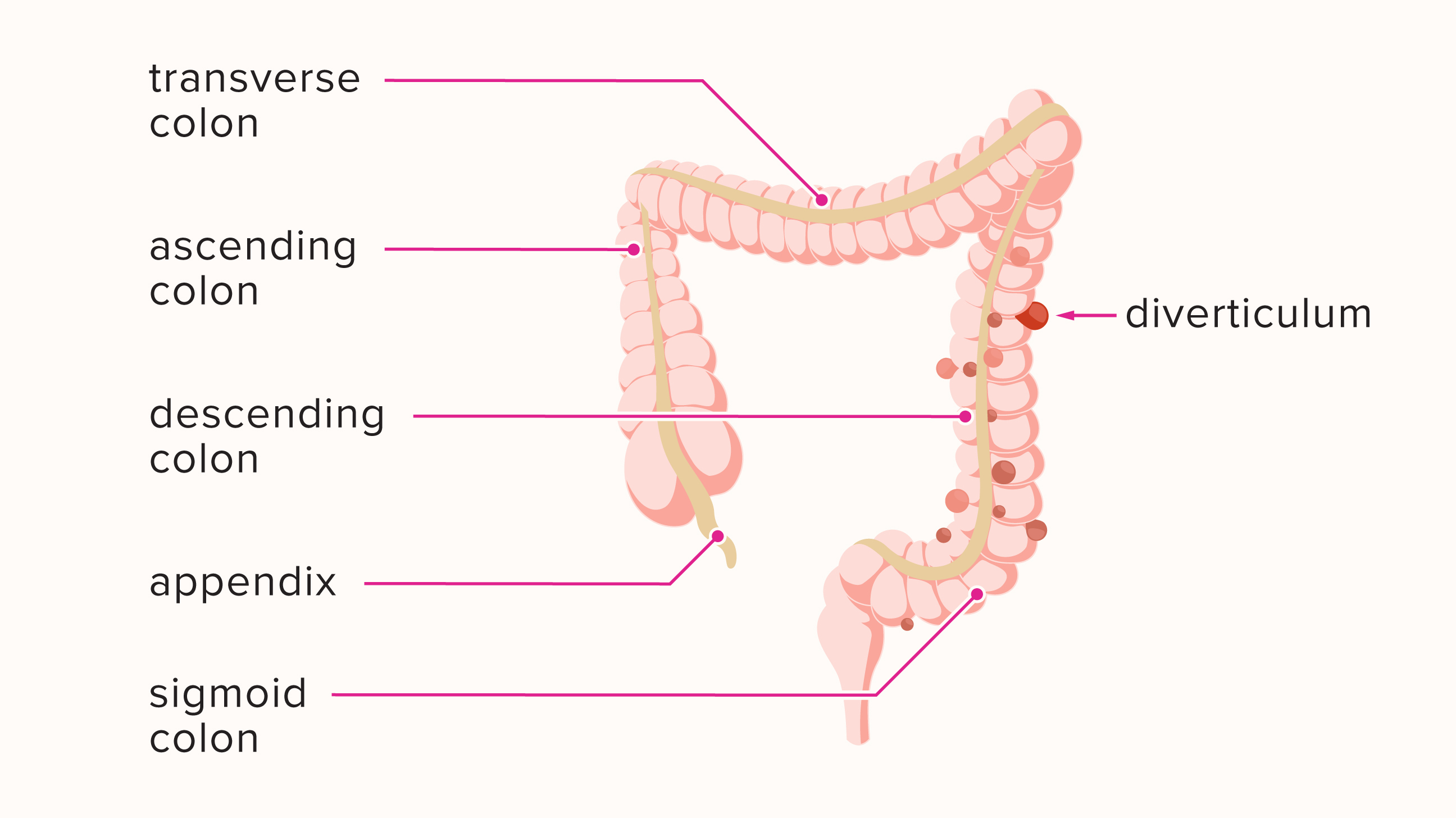 what does severe diverticular disease mean
