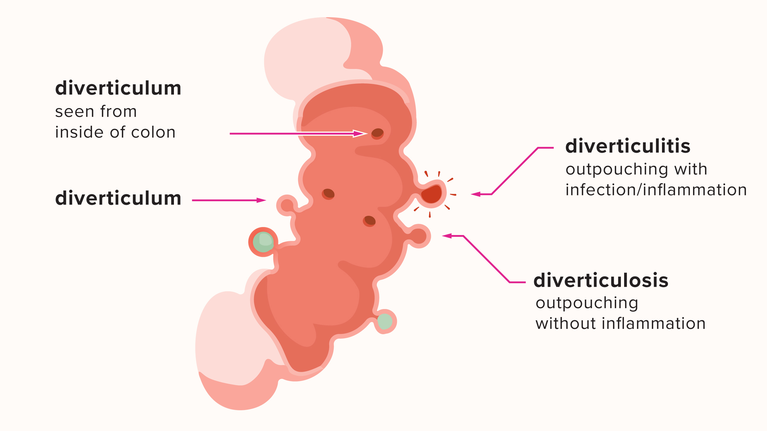 Diverticulitis: Symptoms, Causes, Treatments & More