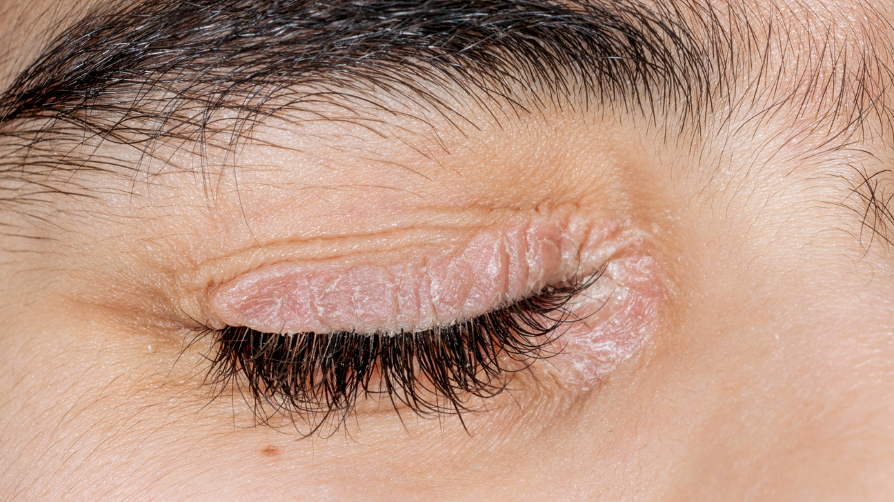 Psoriasis Around the Eyes: Pictures, Symptoms, Treatment