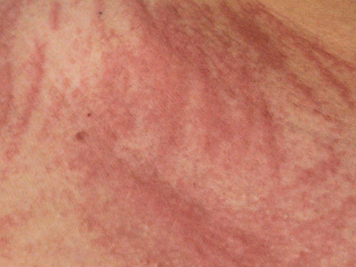 Waking Up with Scratches: What's Causing Them?