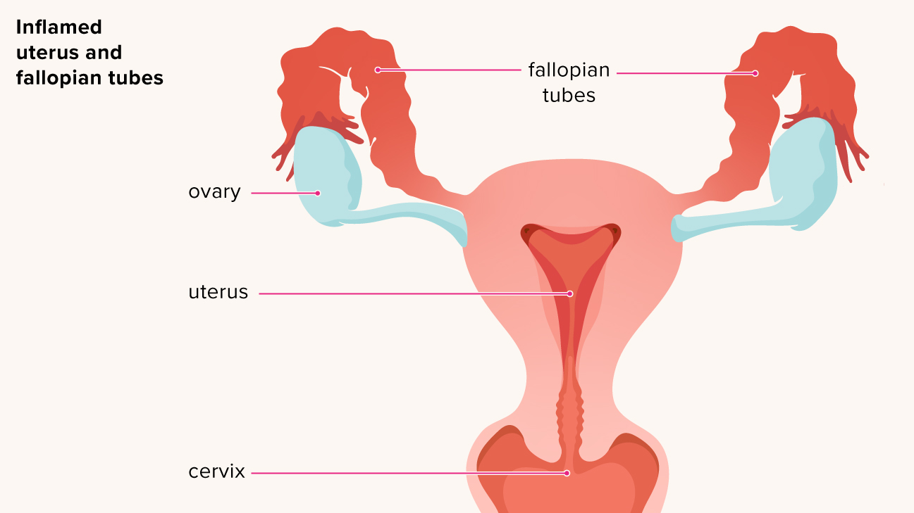 Pelvic Inflammatory Disease Risk Factors Symptoms Treatments