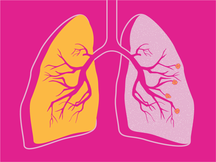 COPD: Stages, Causes, Treatment, and More