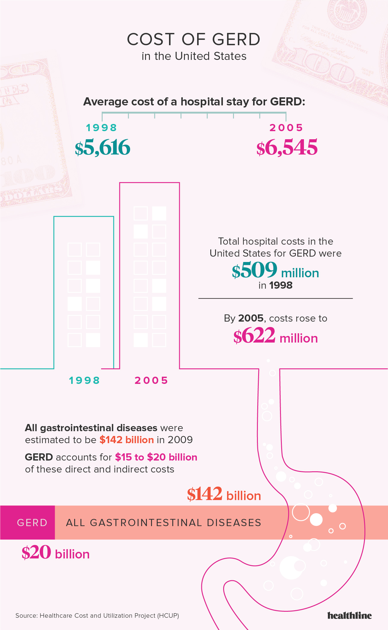 GERD: Facts, Statistics, and You