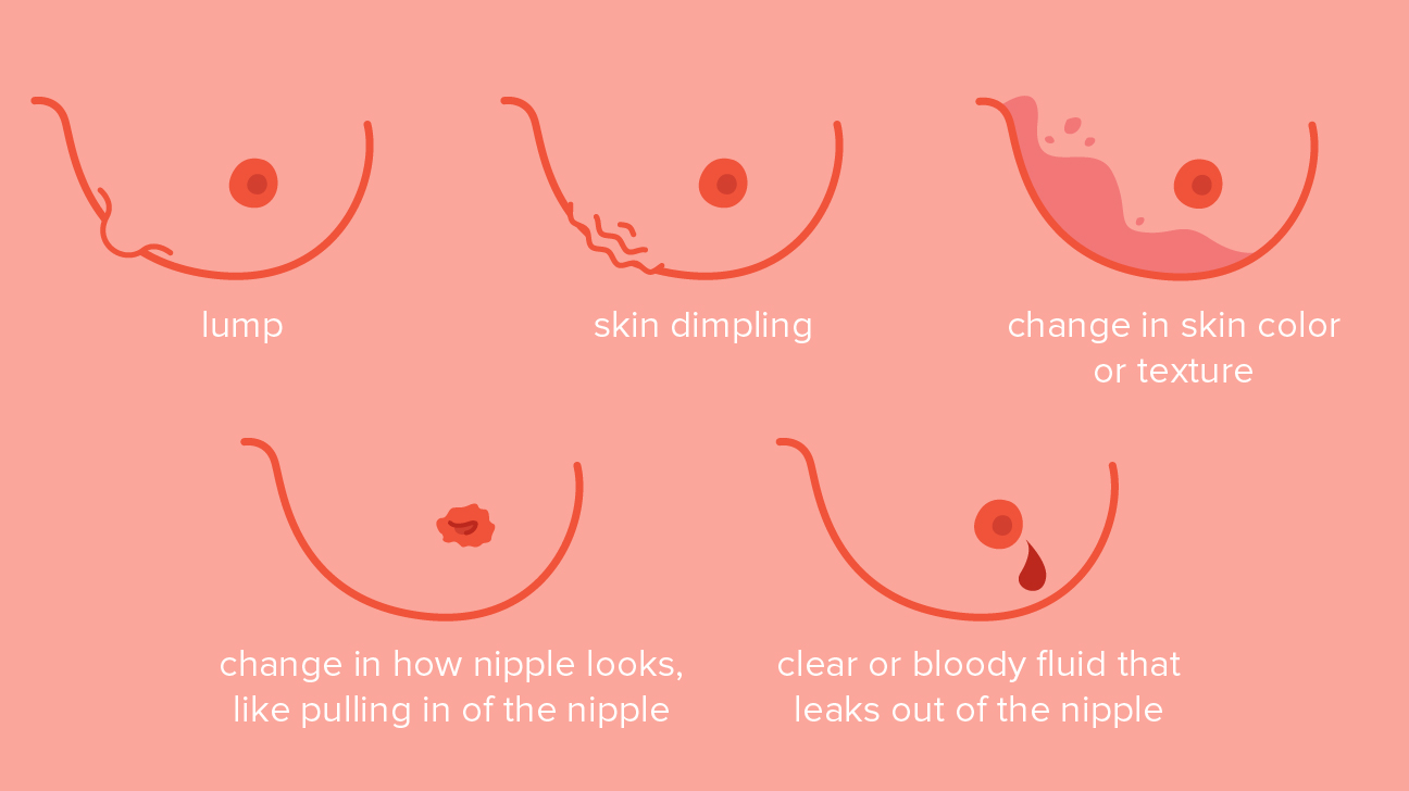 Breast Cancer Dimpling Tips For Identification
