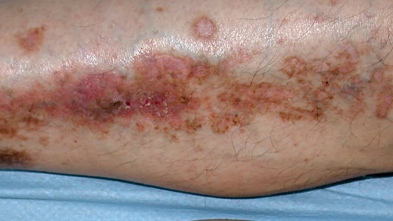 Type 2 Diabetes And Skin Pictures Dermopathy Infections And More