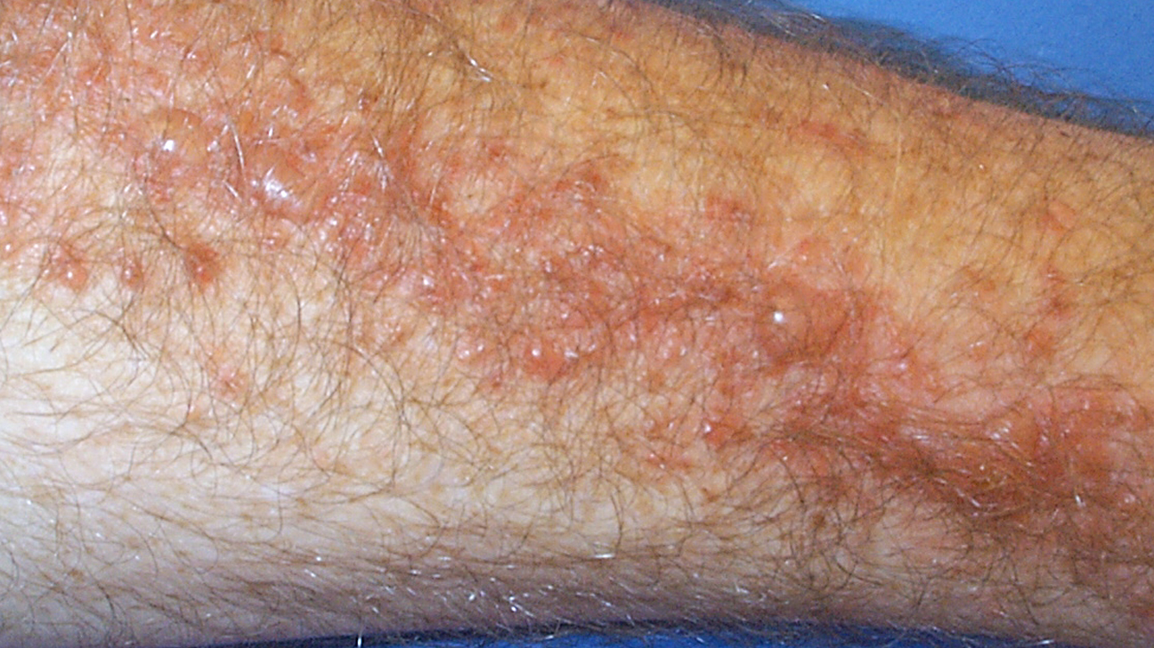 Poison Ivy Rash Pictures Remes