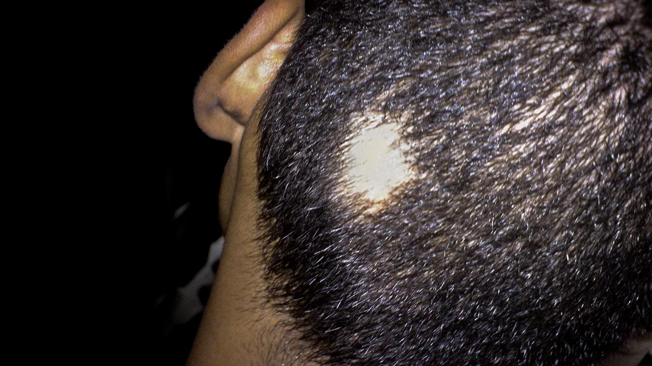 alopecia areata symtom