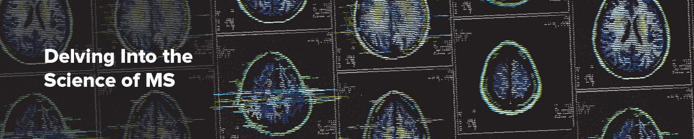 深入研究多发性硬化症的科学