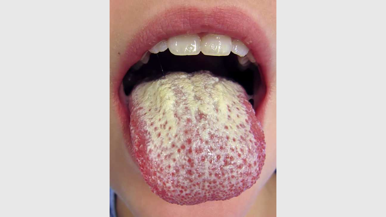 Green Tongue Causes Syndromes And Treatment