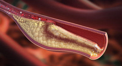 Stents and Blood Clots: Procedure, Recovery, Risks, and More