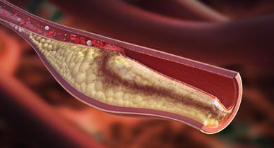 Air Embolism: Causes, Symptoms, and Diagnosis
