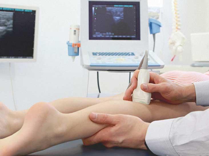 Deep Vein Thrombosis Treatment at Home