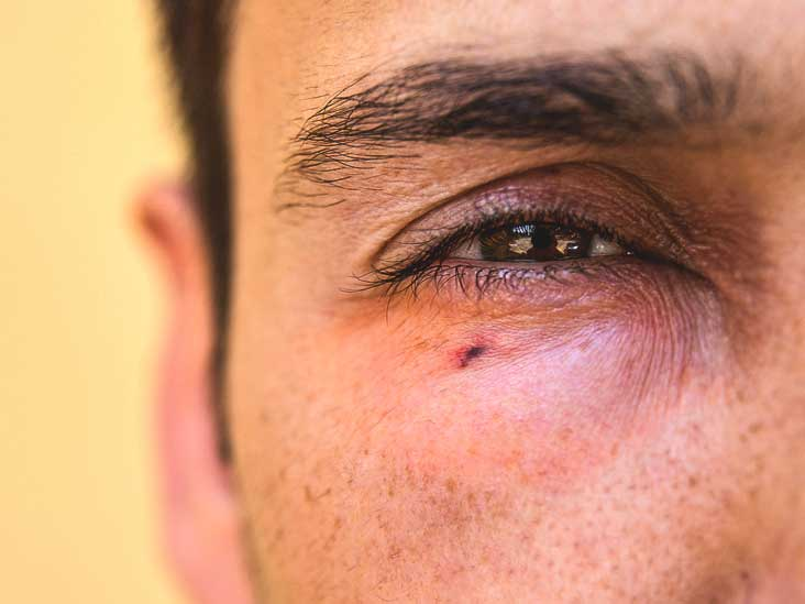 Eye redness: Causes, Symptoms and Diagnosis