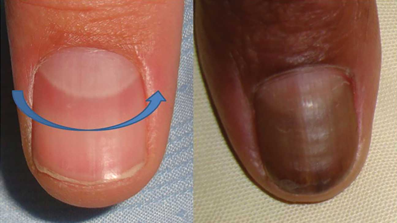 Mean red nails what does Heart disease:
