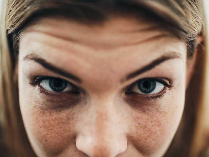 How to Get Rid of a Unibrow: 8 Ways