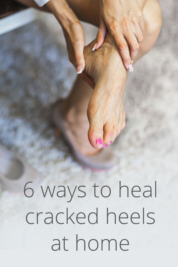 Cracked Heels Remedies Prevention And More