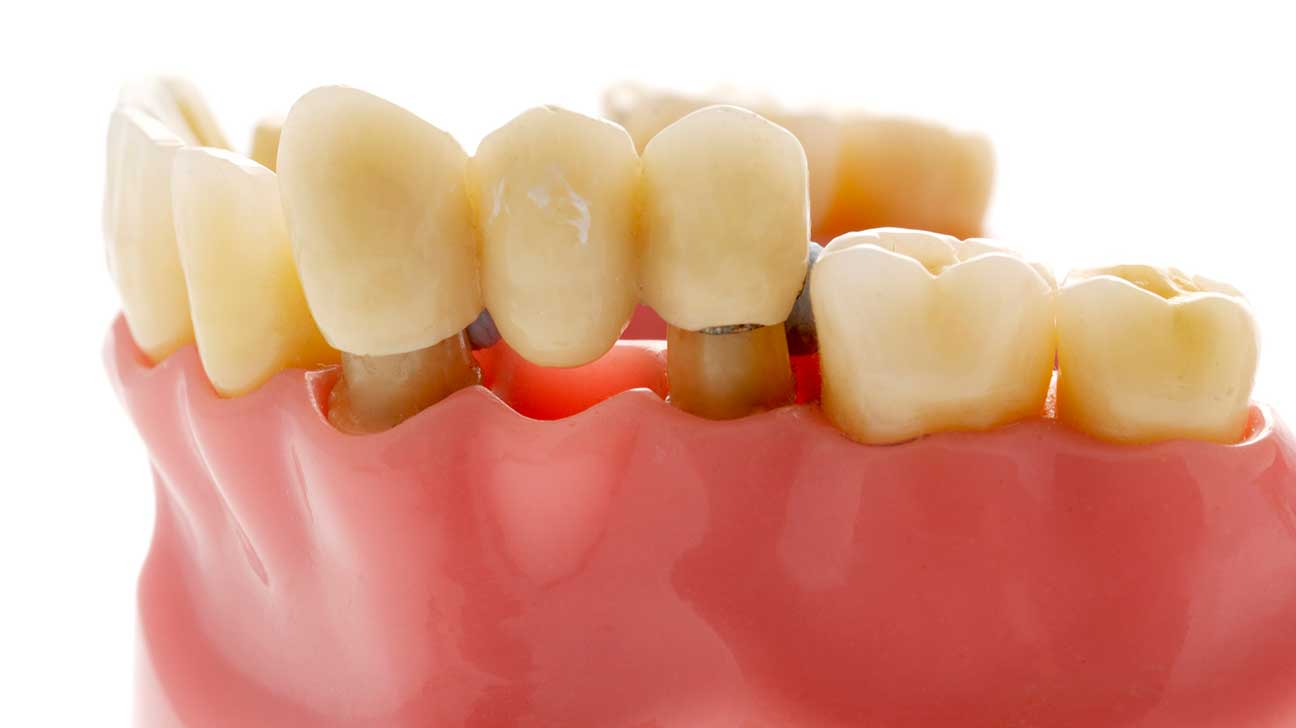 False Teeth: Costs, Cleaning, Alternative, and Pictures