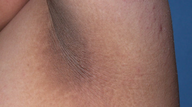 Acanthosis Nigricans Treatment Pictures And Causes