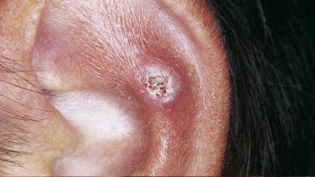 Chondrodermatitis Nodularis Helicis: Symptoms and More