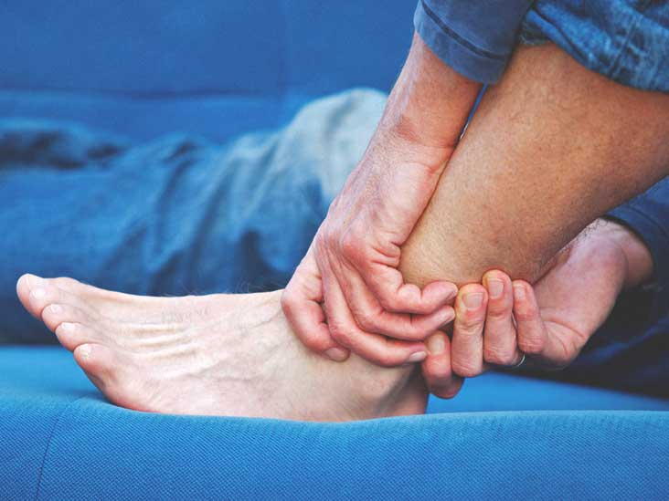Avulsion Fracture: Treatments, Recovery, and More