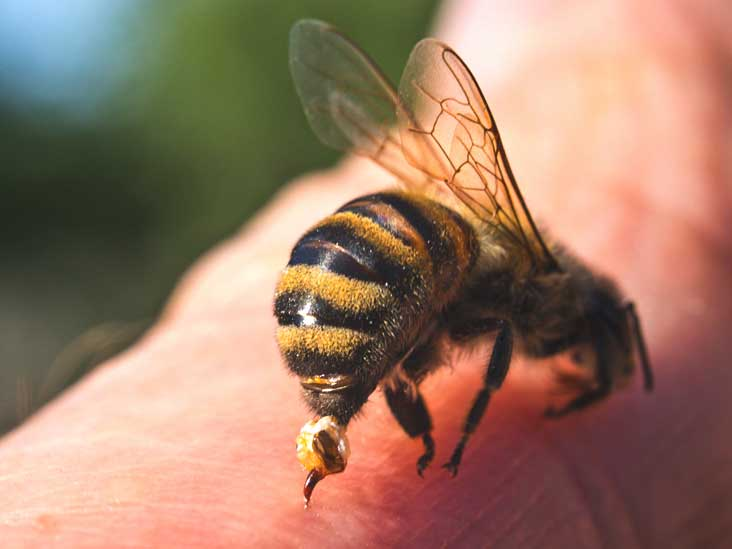 Image result for beesting