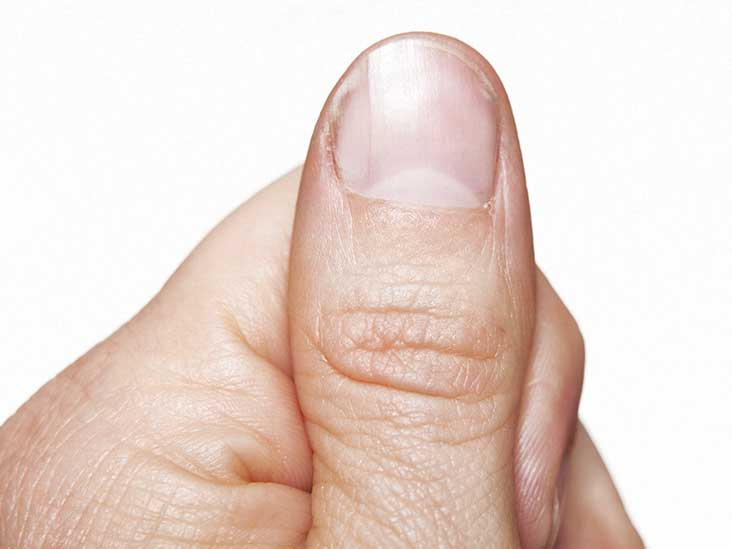 How To Identify And Treat Nail Pitting