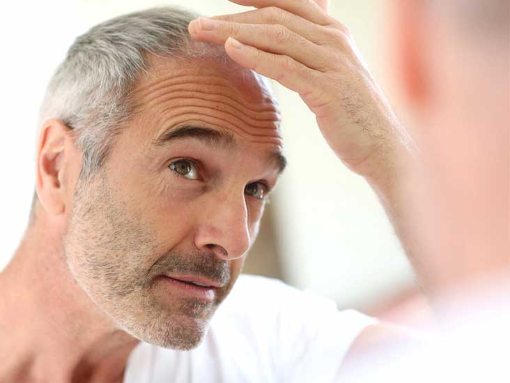 dating tips for guys over 50 hair loss images