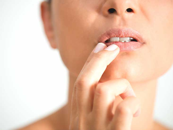 What Is the Herpes Viral Culture of Lesion Test?