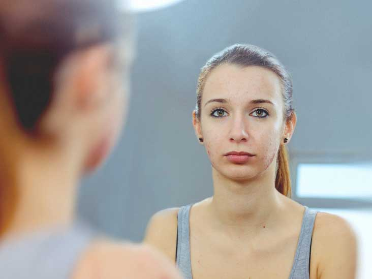 Dairy and Acne: Are Dairy Products the Cause of Your Acne?