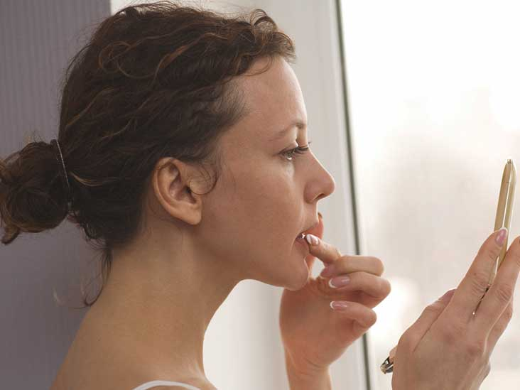 Popping a Cold Sore: What Happens and What to Do Instead