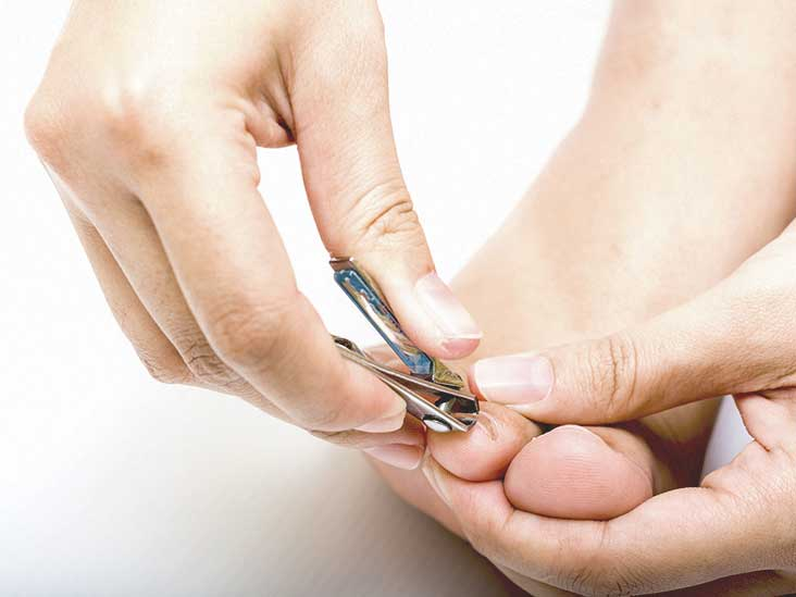 Black Toenail: Causes, Treatments, and More