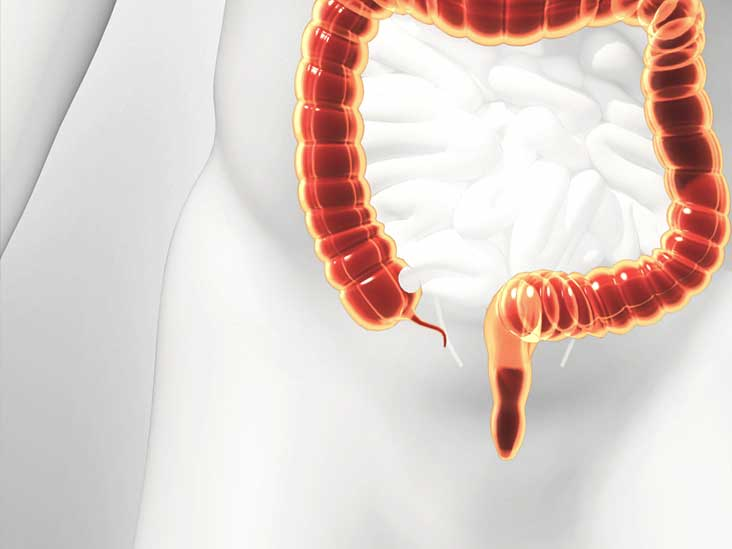 Appendectomy: Procedure, Preparation & Risks
