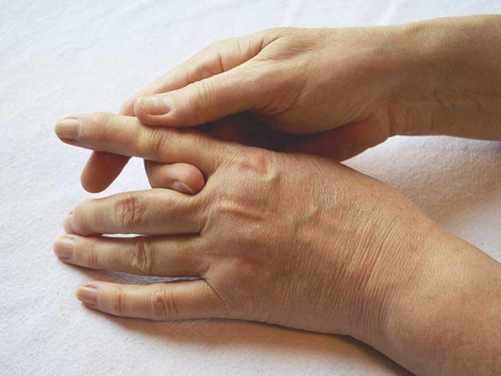 Trigger Finger: Symptoms, Causes, and Risk Factors